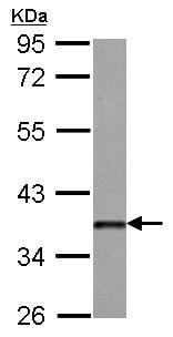 Western blot - Anti-Dkk3 antibody (ab126080)