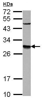 Western blot - Anti-DPM1 antibody (ab126092)