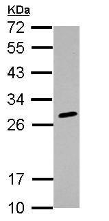 Western blot - Anti-HLA-DQB2 antibody (ab126139)