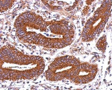 Immunohistochemistry (Formalin/PFA-fixed paraffin-embedded sections) - Anti-HLA-DQB2 antibody (ab126139)