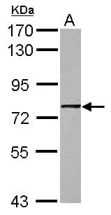 Western blot - Anti-GNL1 antibody (ab126141)