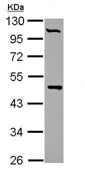 Western blot - Anti-PCYT2 antibody (ab126142)
