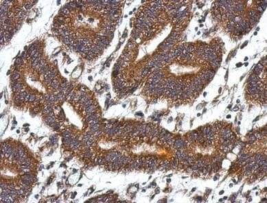 Immunohistochemistry (Formalin/PFA-fixed paraffin-embedded sections) - Anti-QDPR antibody (ab126150)