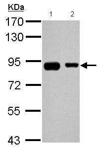 Western blot - Anti-EPS8L2 antibody (ab126155)