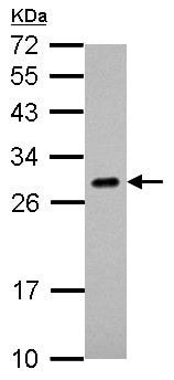 Western blot - Anti-Endothelin 1 antibody (ab126159)