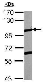 Western blot - Anti-Eph receptor A4 antibody (ab126169)
