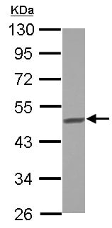 Western blot - Anti-BCKDHA antibody (ab126173)