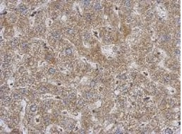 Immunohistochemistry (Formalin/PFA-fixed paraffin-embedded sections) - Anti-PABPC3 antibody (ab126178)