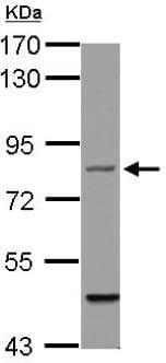 Western blot - Anti-Filensin antibody (ab126235)