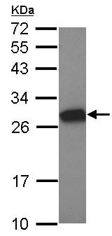 Western blot - Anti-MTL5 antibody (ab126240)