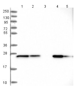 Western blot - Anti-UQCRFS1P1 antibody (ab126310)