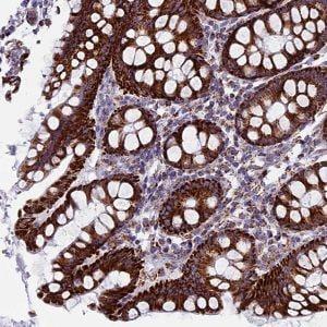 Immunohistochemistry (Formalin/PFA-fixed paraffin-embedded sections) - Anti-UQCRFS1P1 antibody (ab126310)