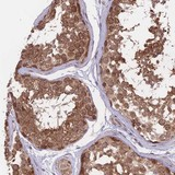 Immunohistochemistry (Formalin/PFA-fixed paraffin-embedded sections) - Anti-FABP12 antibody (ab126324)