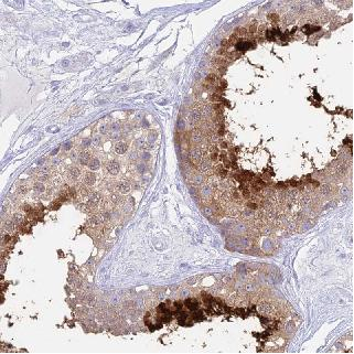 Immunohistochemistry (Formalin/PFA-fixed paraffin-embedded sections) - Anti-CABS1 antibody (ab126341)