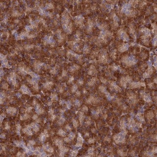 Immunohistochemistry (Formalin/PFA-fixed paraffin-embedded sections) - Anti-EXOC3L4 antibody (ab126345)