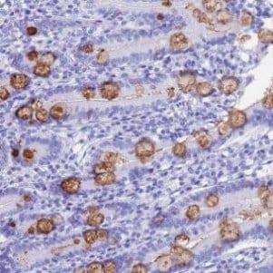 Immunohistochemistry (Formalin/PFA-fixed paraffin-embedded sections) - Anti-OR10J3 antibody (ab126367)