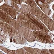 Immunohistochemistry (Formalin/PFA-fixed paraffin-embedded sections) - Anti-C5orf34 antibody (ab126400)