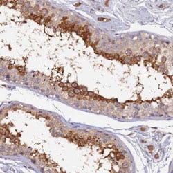 Immunohistochemistry (Formalin/PFA-fixed paraffin-embedded sections) - Anti-RSPH6A antibody (ab126415)