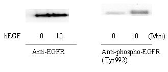 Western blot - EGFR (Tyr992) In-Cell ELISA Kit (ab126422)