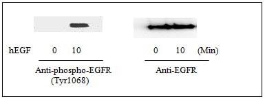 Western blot - EGFR (pY1068) + total EGFR Human ELISA Kit (ab126439)