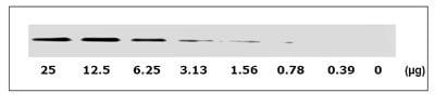 Western blot - EGFR (pY1086) + total EGFR ELISA Kit (ab126441)