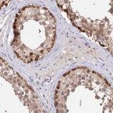 Immunohistochemistry (Formalin/PFA-fixed paraffin-embedded sections) - Anti-C10orf55 antibody (ab126546)