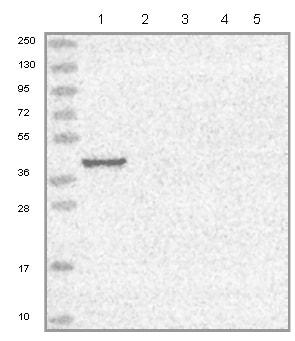 Western blot - Anti-WDR69 antibody (ab126567)