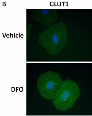 Immunocytochemistry/ Immunofluorescence - HIF1a + GLUT1 Hypoxia Flow Kit (ab126584)