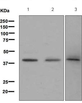 Western blot - Anti-Blood Group Antigen Precursor antibody [EPR6205] (ab126612)