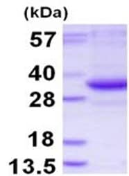 SDS-PAGE - TATDN3 protein (His tag) (ab126654)