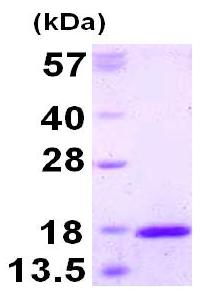 SDS-PAGE - TXNL4A protein (His tag) (ab126672)