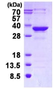 SDS-PAGE - MMACHC protein (His tag) (ab126674)