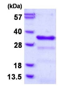 SDS-PAGE - CHMP1B protein (His tag) (ab126679)