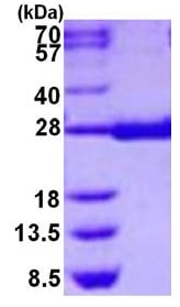 SDS-PAGE - Prostaglandin D Synthase (hematopoietic) protein (His tag) (ab126698)