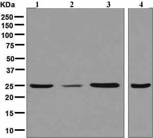 Western blot - Anti-UCHL3 antibody [EPR5332] (ab126703)