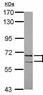 Western blot - Anti-PATZ1  antibody (ab126903)