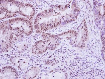 Immunohistochemistry (Formalin/PFA-fixed paraffin-embedded sections) - Anti-Vinexin antibody (ab126986)