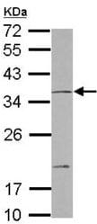 Western blot - Anti-NT2NL antibody (ab127029)