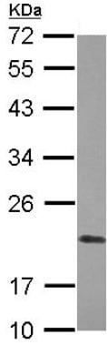 Western blot - Anti-Cyclophilin F antibody (ab127184)