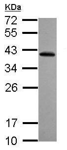 Western blot - Anti-RFPL2 antibody (ab127718)