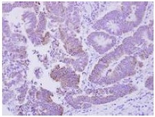 Immunohistochemistry (Formalin/PFA-fixed paraffin-embedded sections) - Anti-CDGSH iron sulfur domain-containing protein 2 homolog antibody (ab127740)