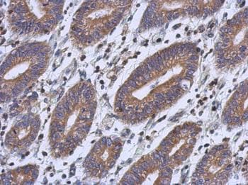 Immunohistochemistry (Formalin/PFA-fixed paraffin-embedded sections) - Anti-RFESD antibody (ab127901)