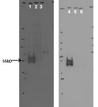 Western blot - Anti-CYP20A1 antibody [8.3_1G9] (ab128023)