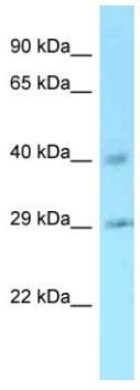 Western blot - Anti-Ccnj antibody (ab128268)