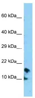 Western blot - Anti-CRB3 antibody (ab128362)