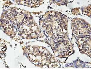 Immunohistochemistry (Formalin/PFA-fixed paraffin-embedded sections) - Anti-USP35 antibody (ab128592)
