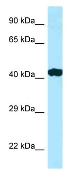 Western blot - Anti-RILP antibody (ab128616)