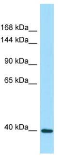 Western blot - Anti-DRP2 antibody (ab128658)