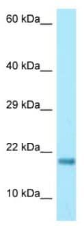Western blot - Anti-RPS17 antibody (ab128671)