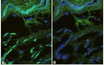 Immunocytochemistry/ Immunofluorescence - Anti-CCM2 antibody (ab129386)